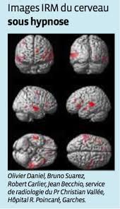 Chirurgie cérébrale sous hypnose